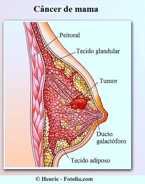 cancer mamar malign invaziv cancerul bucal cauze
