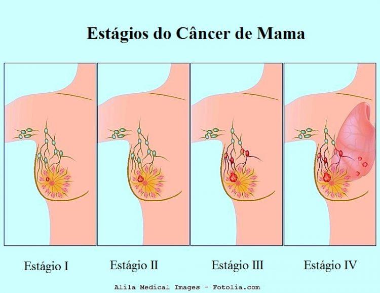 Carcinoma de mama,estagio