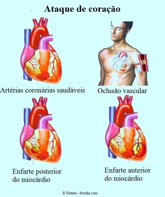 Infarto anterior, posterior, coronárias