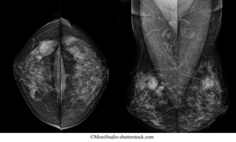 doença fibrocística
