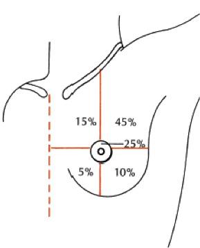 Quadrantectomia, frequência de cancer de mama