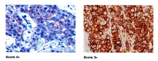 HER2,superexpressão, membrana celular