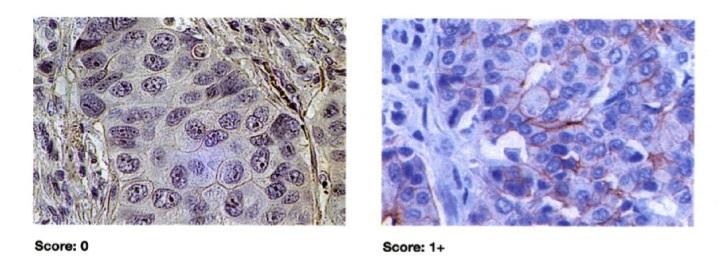 score, câncer de mama, HER2