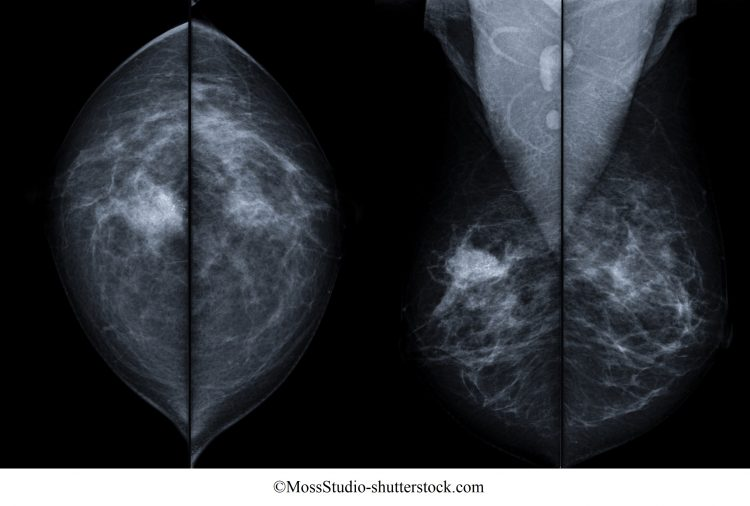mamografia,carcinoma,mama