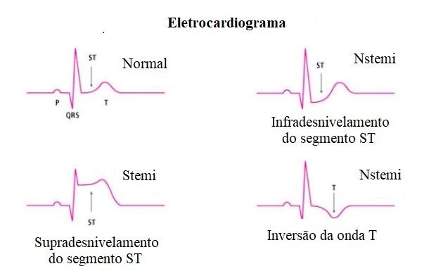 ECG, STEMI, NSTEMI