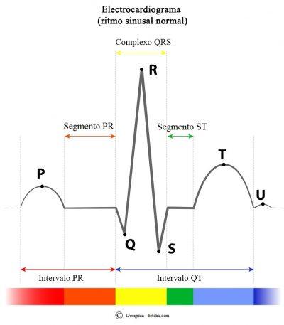 Electrocardiograma, segmento, intervalo, QRS,