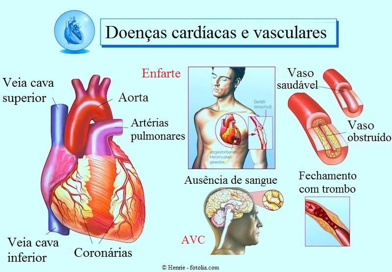 Enfarte-AVC-trombo