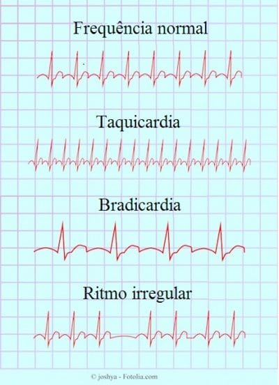 batimento cardiaco normal gravidez