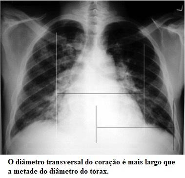 Insuficiência cardíaca, radiografia