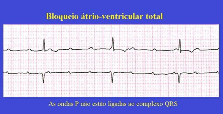 bloqueio átrioventricular total
