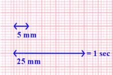 papel milimetrado ecg