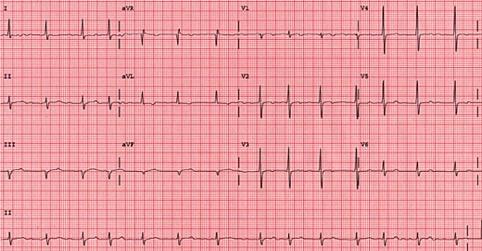 Fibrilação atrial, ECG