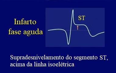 infarto, agudo, ecg, ST