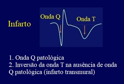 infarto, ecg, onda Q, T