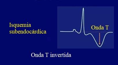 isquemia subendocardica, onda T