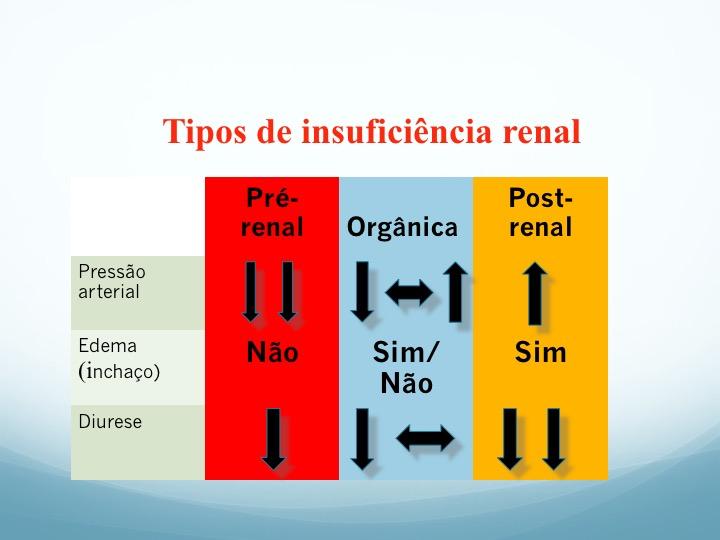 Insuficiência renal aguda, pre-renal, organica