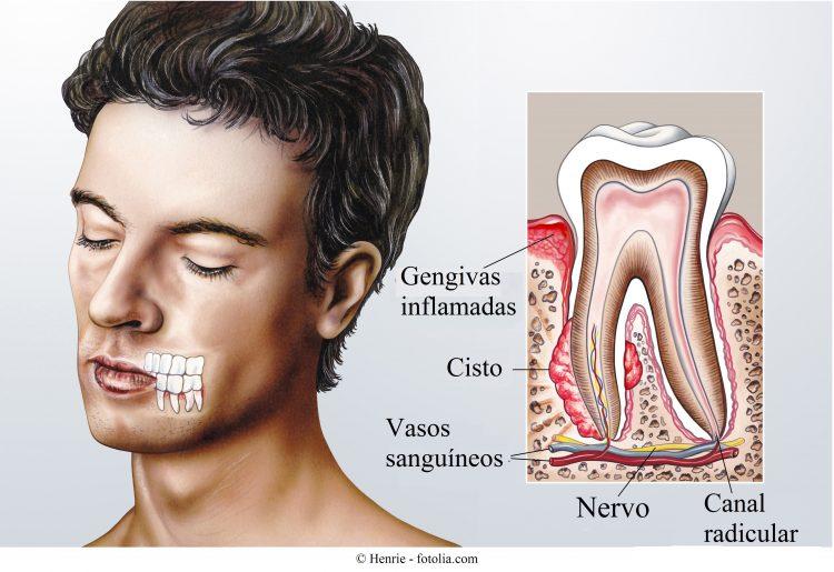 Cisto, dente