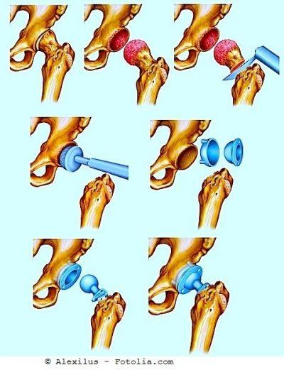 Cirugia de prótese do quadril