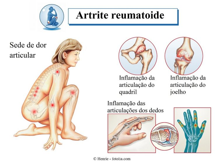 o que causa a artrite do quadril
