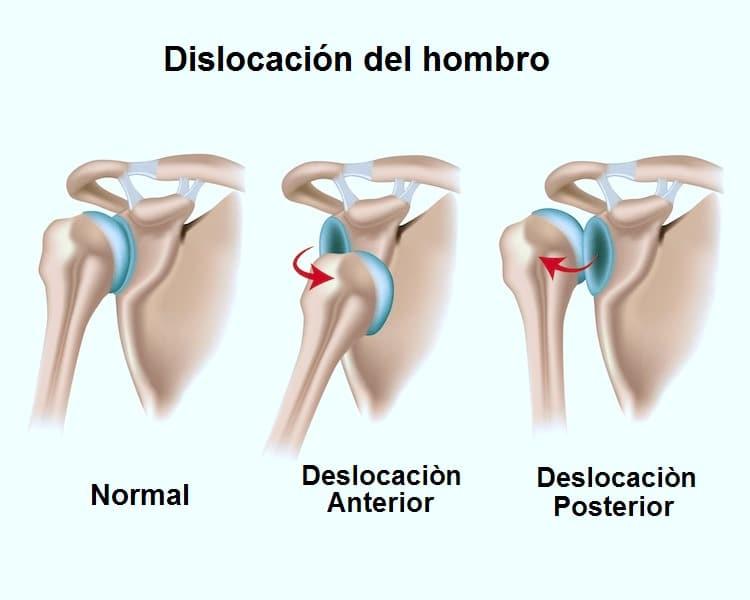 luxación, hombro, anterior, posterior, ligamentos, laxitud, tipo, dolor, fractura, lesión