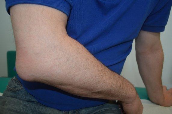 bursitis de codo, dolor, bursa del olécranon, hinchazón