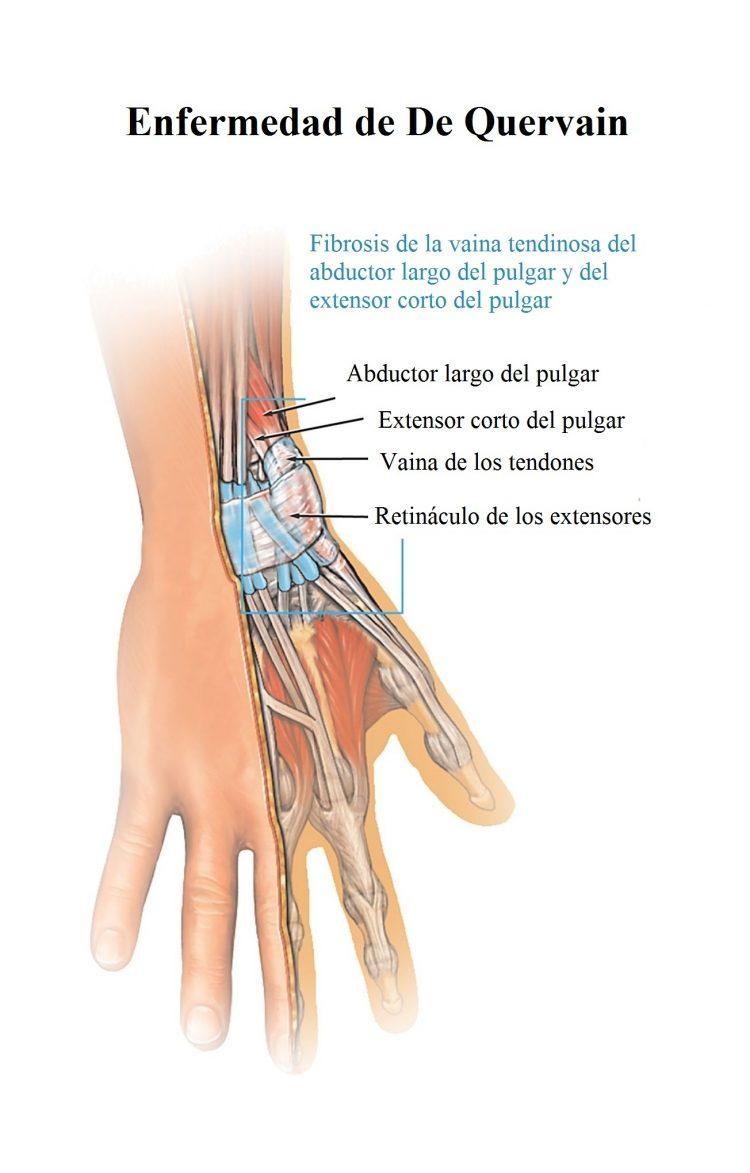 Síndrome de De quervain, causas, síntomas, tratamiento, fisioterapia ...