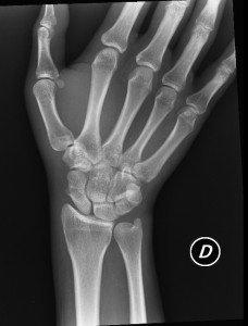Radiografía de mano y de muñeca, fractura, escafoides, carpo, algodistrofia