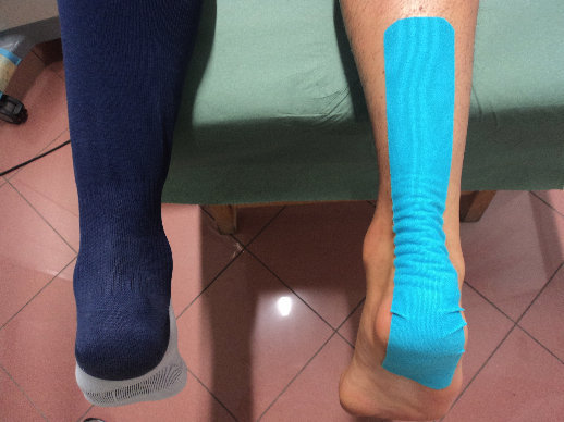 Kinesio-taping-neuromuscular-drenaje-detensione-tendón-tendinitis-tendinoso-tobillo