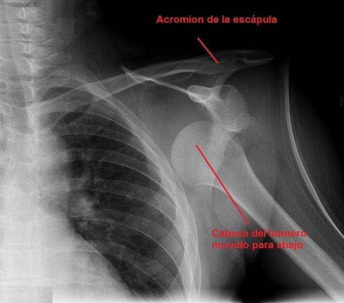 tomografía axial computarizada, clavícula, húmero, luxado, hombro