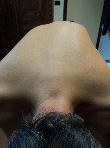 Deformidad, Escoliosis dorsal, convexidad derecha