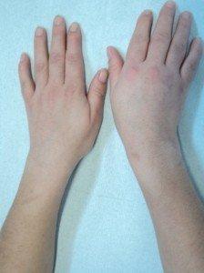 contusión, mano, trauma, caído, músculos, deportivos, pelota