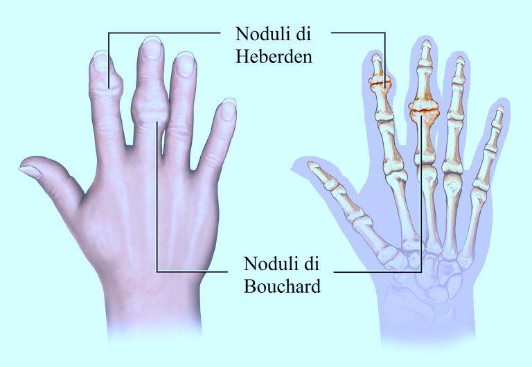 artrosis-de-la-mano-nódulos de Bouchard