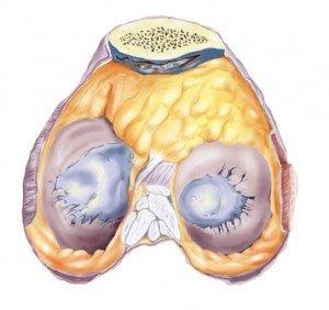 Lesión de rodilla cartílago, artritis, osteo-esclerosis, degeneración articular, deslizamiento, dolor, dolor, síntomas, causas, limitación funcional, la inflamación, la edad avanzada, inflamación, edema