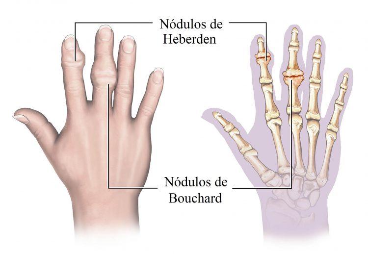 nodulos en las manos