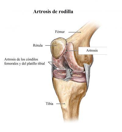 Artrosis de rodilla, fémur, rótula, tibia