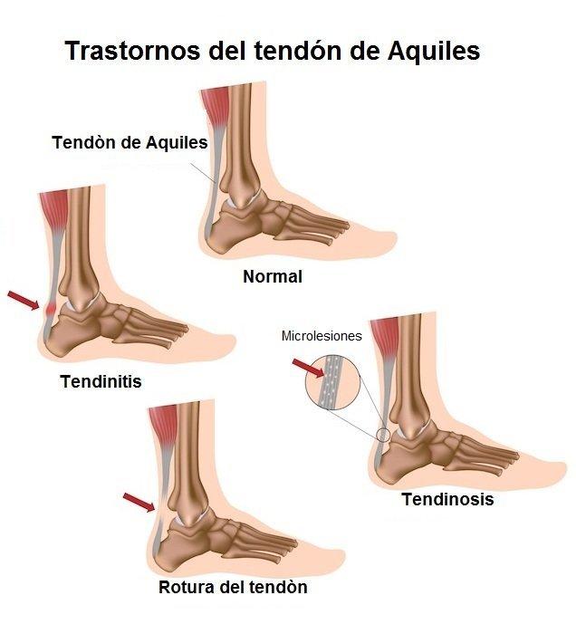 Aquiles, tendinosis, lesión, rotura, dolor, tendón, tobillo, pie, talón, pantorrilla