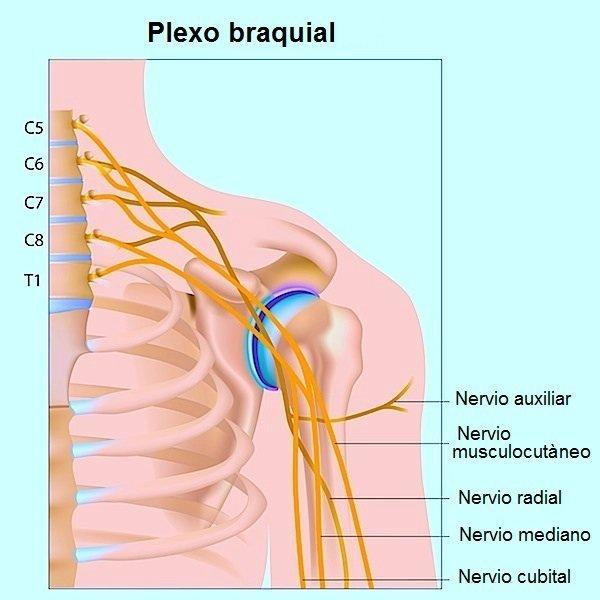 Nervios, hombro, radial, fractura, dolor, ardor, hormigueo
