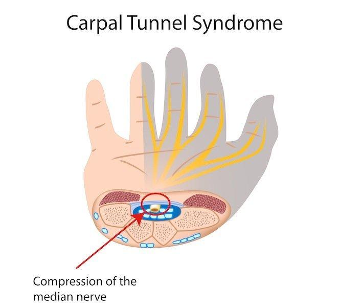 Atrapamiento, dentro, túnel, tendinitis, del carpo, mano, dolor