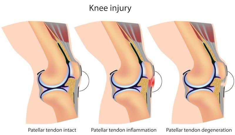 tendinitis de rodilla, inflamación, tendinosis
