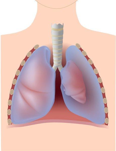 neumotórax, pulmón, trauma, lesión, el aire, la pérdida, sibilancias