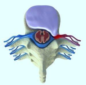 Anatomía, disco, inter, vertebral, protracción, derecha, dx, comprime, raíz, nerviosa, médula, espinal, anulus, irritación, inflamación