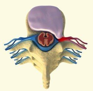 disco, brachialgia, hernia, lateral, derecha, comprise, raíz, nerve, vértebras, médula, espinal, fissurato, resquebrajado