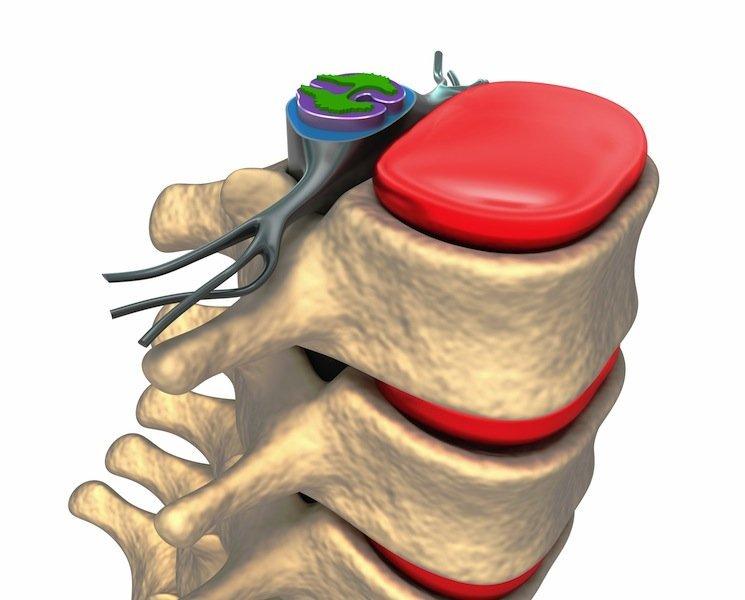 Vértebra lumbar, nervio, hernia discal, protrusión, L1, L2, L3, L4, L5