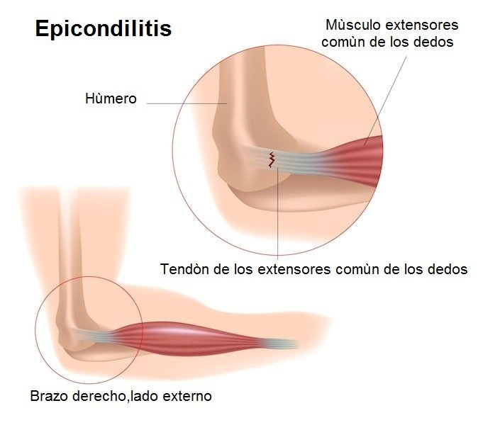 Tendinitis, epicondilitis, extensor, común, dedos, dolor, inflamación, desgarro, lesión
