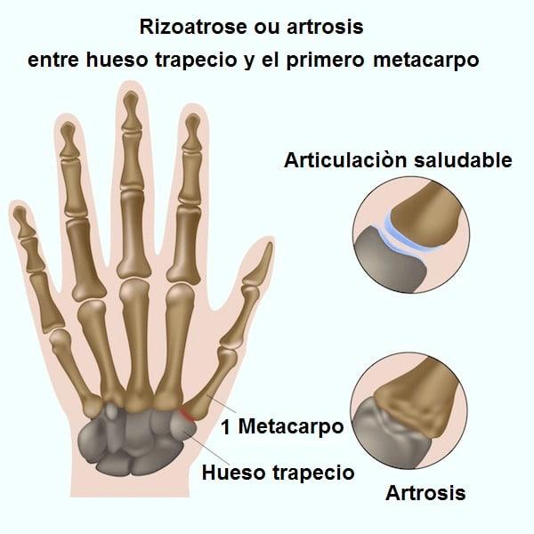 artrosis, trapecio, metacarpiano, pulgar, dolor