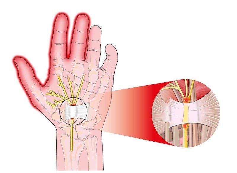 Túnel, carpiano, atrapamiento, nervio, mediano, pulgar, índice, medio, dedos, mano, movimientos