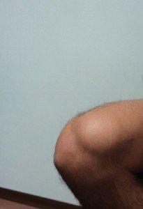 Bursitis, rodilla, bola supra-patelar