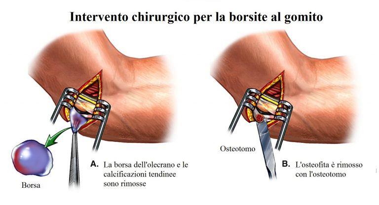 bursitis-de-codo-extirpación-quirúrgica