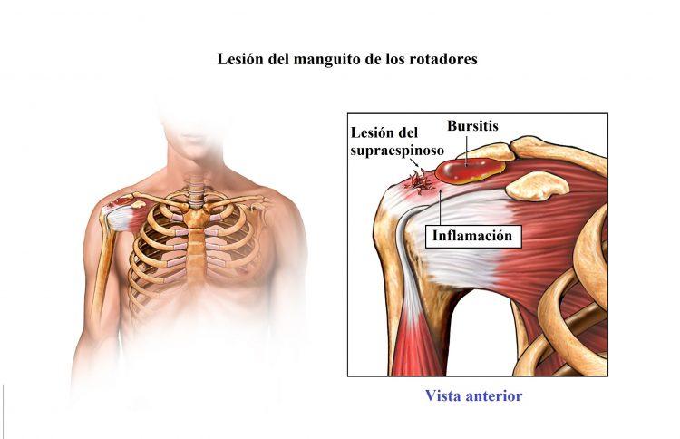 lesion del manguito de los rotadores
