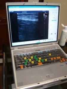 ecografía, ordenador, pantalla, vídeo, terminal, tendinitis, músculo, contractura
